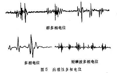 广州中考政治时事_2014政治时事热点_时事政治辅导
